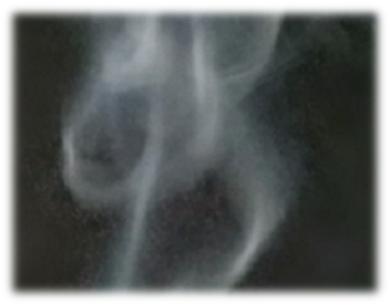 Rauchentwöhnung durch E-Zigaretten??