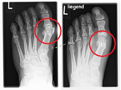 Röntgenbilder vor und nach der Hallux Valgus OP Chevron Methode