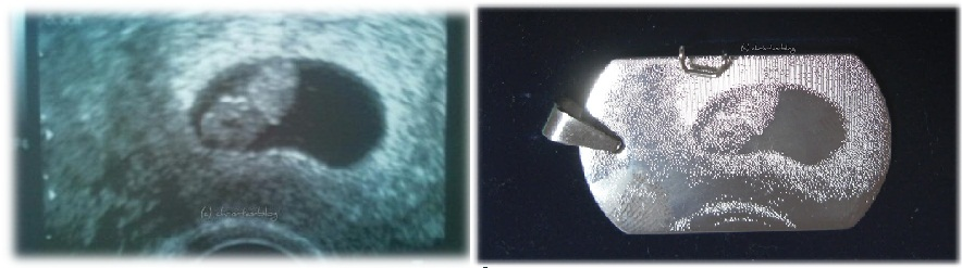 Ultraschallbild auf Silberkette graviert